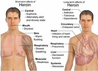 heroin_body